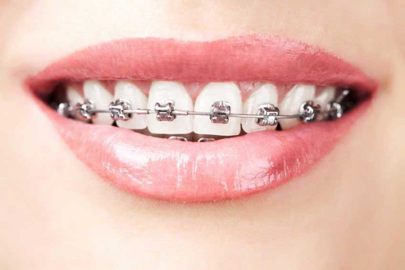 Pros and Cons of Lingual Braces