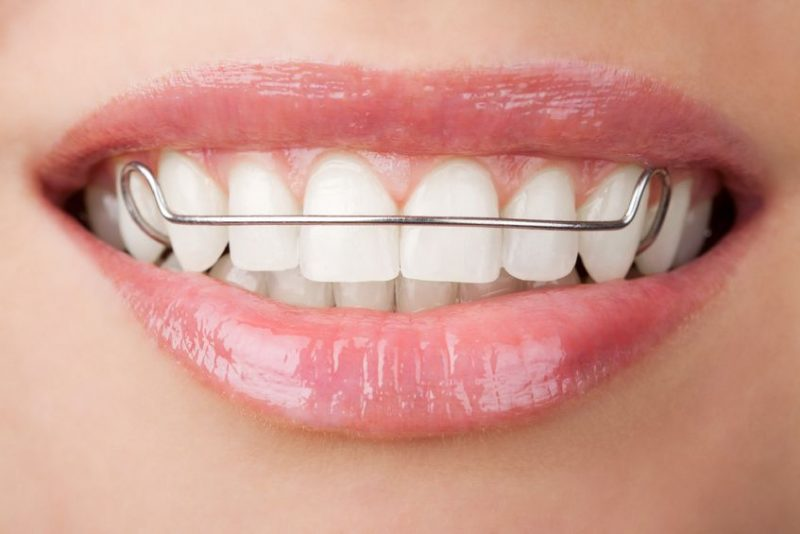 How Do You Know If You Need Orthodontic Treatment?