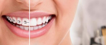 What Are the Advantages of Invisalign Over Other Types of Braces?