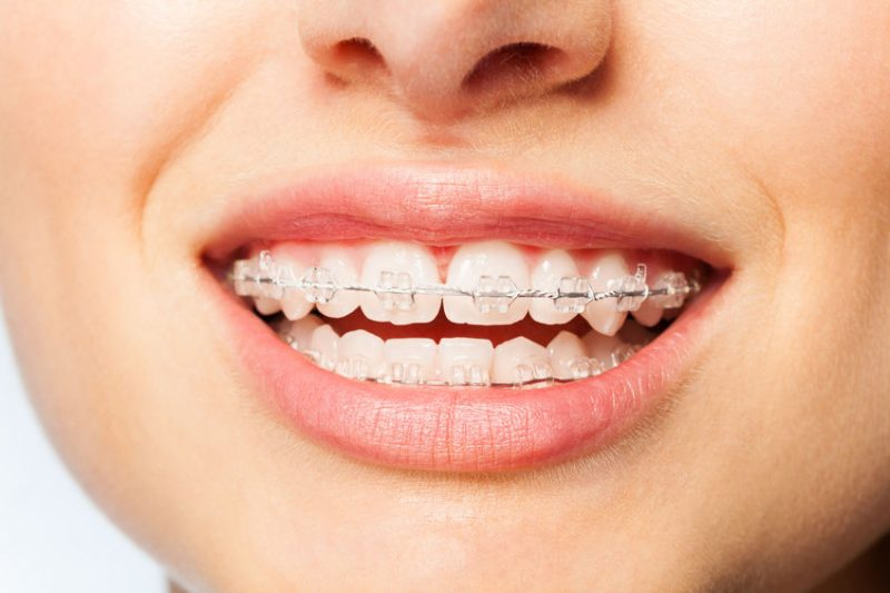 What Are the Pros and Cons of Clear Ceramic Braces?